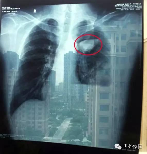 奇迹:五个月,从肺癌四期到基本痊愈